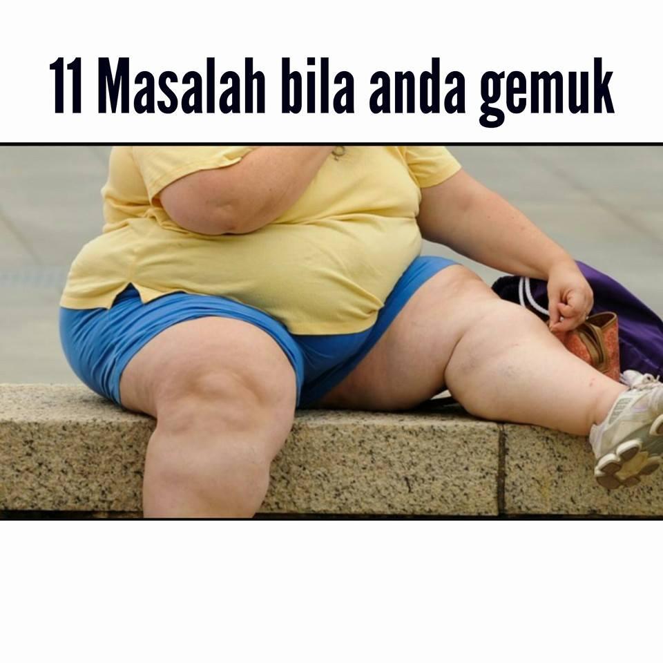 11 masalah bila anda gemuk